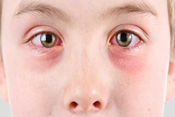 allergic pink eye
