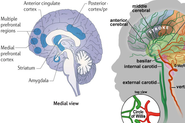 apparent reduction of gray and lower brain