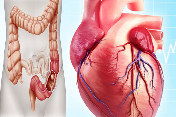 colon cancer and heart disease