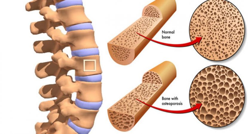 loss of bone density