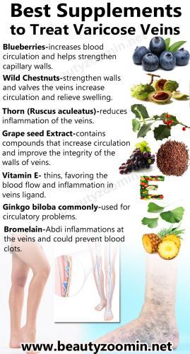 Best Supplements to Treat Varicose Veins