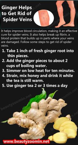 Ginger Helps to Get Rid of Spider Veins