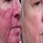 Rosacea And Its Cure Using Vitamin C Serum