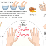 How To Treat Swollen Fingers