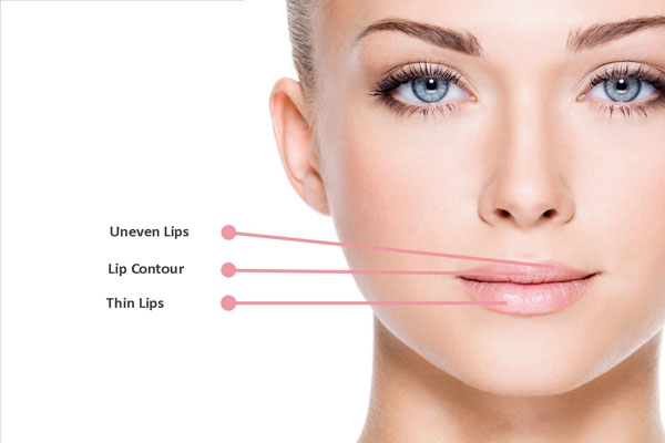 Candidates for Lip Lifts