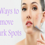 7 Ways To Remove Dark Spots