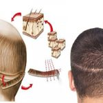 The FUT Hair Transplant to Get over the Problem of Baldness