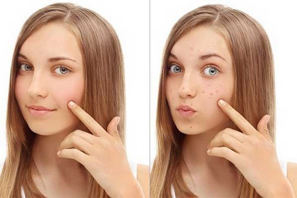 Get Rid Of Brown Spots On Face And Skin