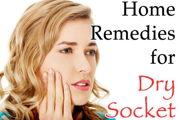 Home Remedies For Dry Socket Also Known As Alveolar Osteitis
