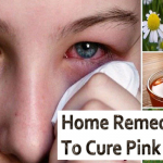 Fast And Easy Home Remedies To Cure Pink Eye