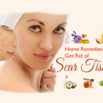Excellent Home Remedies To Get Rid Of Scar Tissue