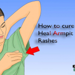 How To Cure Heal Armpit Rashes