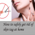 How To Safely Get Rid Of Skin Tag At Home