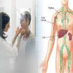 Slow Lymphatic system causes snoring and sleep apnea. Effective ways to keep your lymphatic system clean and healthy