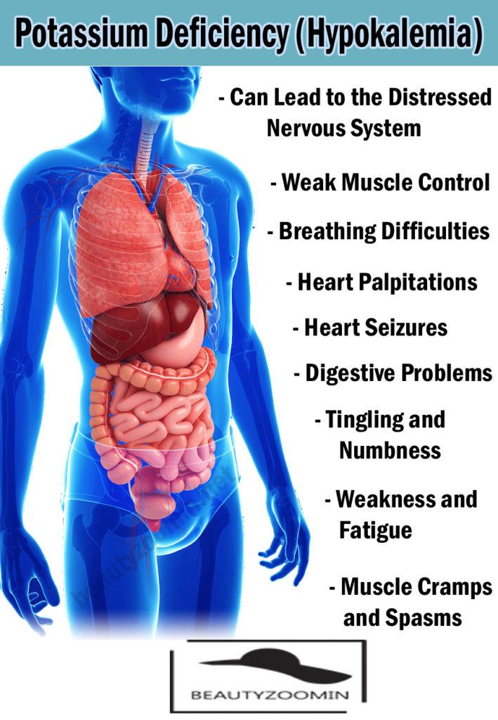 Potassium Deficiency (Hypokalemia)