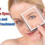 Puffy or Swollen Eyes: Causes and Home Treatment