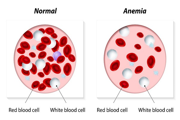 Spirulina has proved to be an effective treatment for anemia