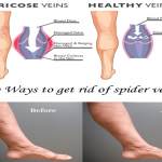 Top Ways To Get Rid Of Spider Veins