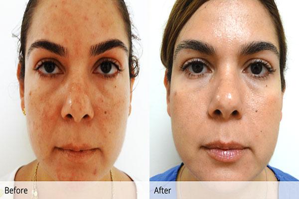Rosacea is a common skin disease