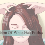 Problem Of White Hair Patches Or Poliosis