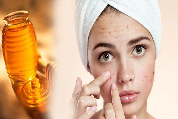 Manuka honey for acne