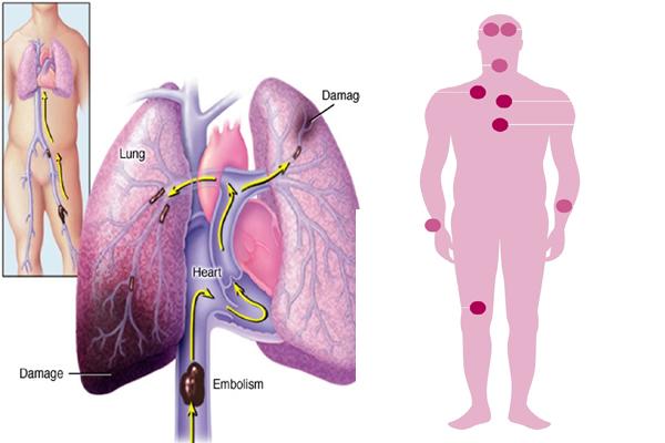 causes of PE