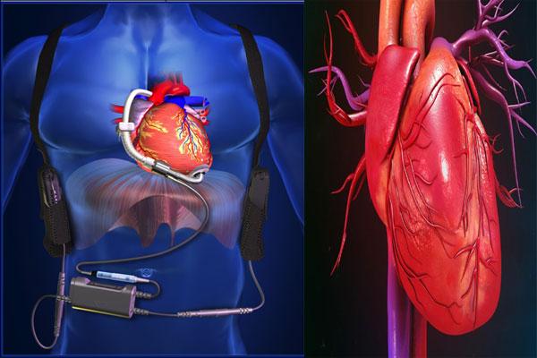 heart pumps