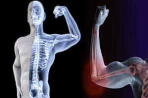 help your bones