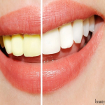 The Growing Popularity Of Teeth Whitening