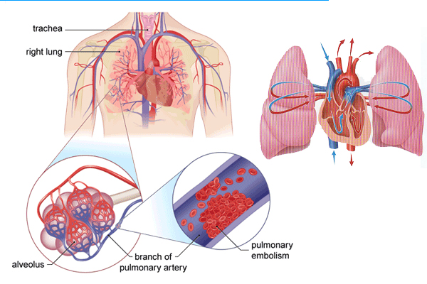 treat pulmonary embolism